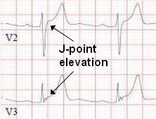 Diagnosis Of STEMI Including ECG Tracings Findings And Examples - Elevation point