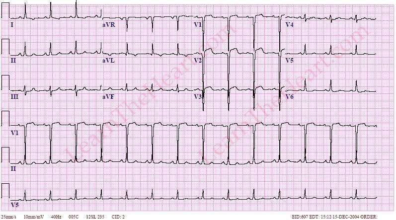 Left Ventricular (LV) Aneurysm ECG | LearntheHeart.com