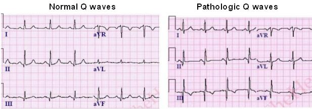 Pathologic Q Waves on ECG | LearntheHeart.com