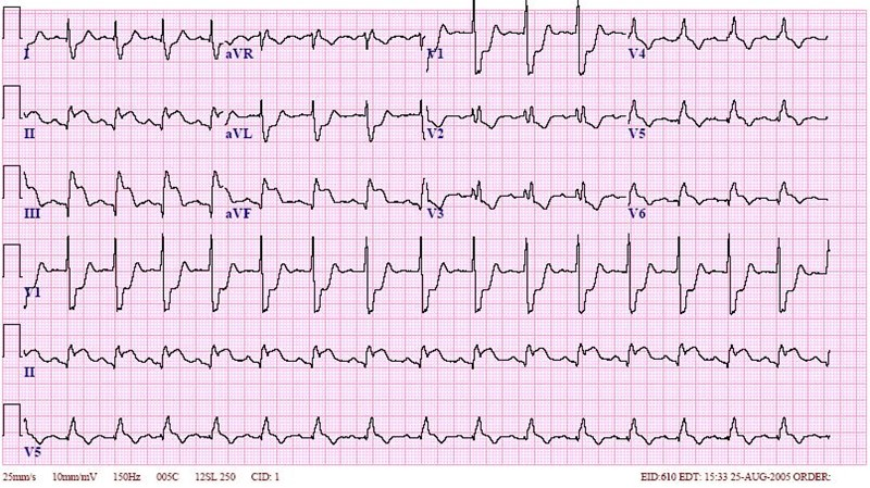 Inferior-STEMI-RBBB1