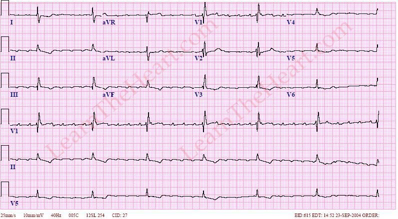 Atrial Flutter with 5:1 Conduction (Example 2) | LearntheHeart com