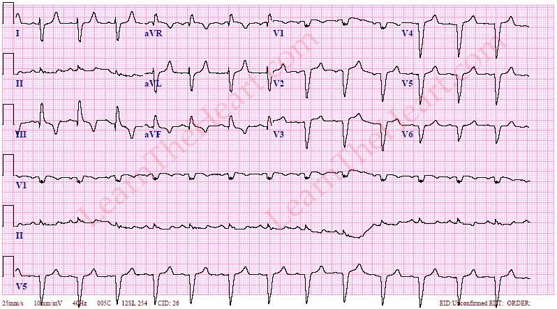 RightAxisDeviationECG