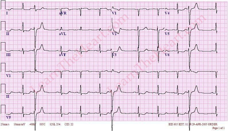 premature ventricular contractions or pvcs ecg example 1