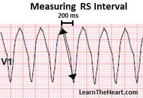 RS-Interval-VT
