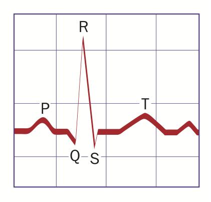 NormalQRS-SimpleLabels