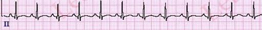 SinusTachycardiaECGCriteria