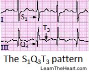 S1Q3T3-ECG-PulmonaryEmbolism