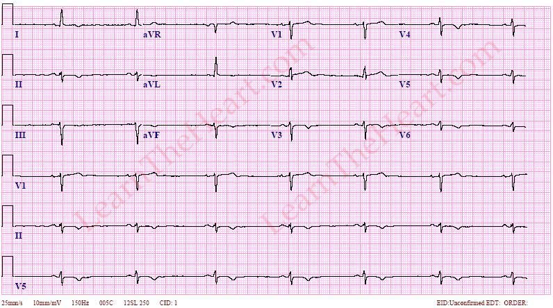 SinusBradycardiaECG