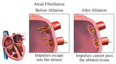 AtrialFibrillationAblation