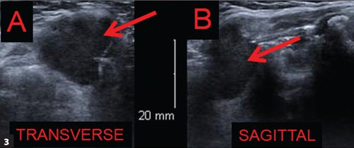 Ultrasound of the neck mass. Ultrasound confirms a simple cyst with posterior enhancement at the location of and just superior to the hyoid bone. No solid component was seen in the cyst. A. Transverse. B. Sagittal.
