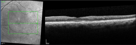 At 6 months follow-up, OCT of the left macula demonstrates pronounced inner retinal atrophy greatest in the temporal macula, consistent with a previous ischemic inner retinal event.