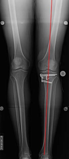 Figure 5. This postoperative anteroposterior long leg radiograph demonstrates correction of alignment to neutral.