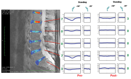 This shows standing lumbar range of motion changes in the spine at pre-flight and post-flight time points.