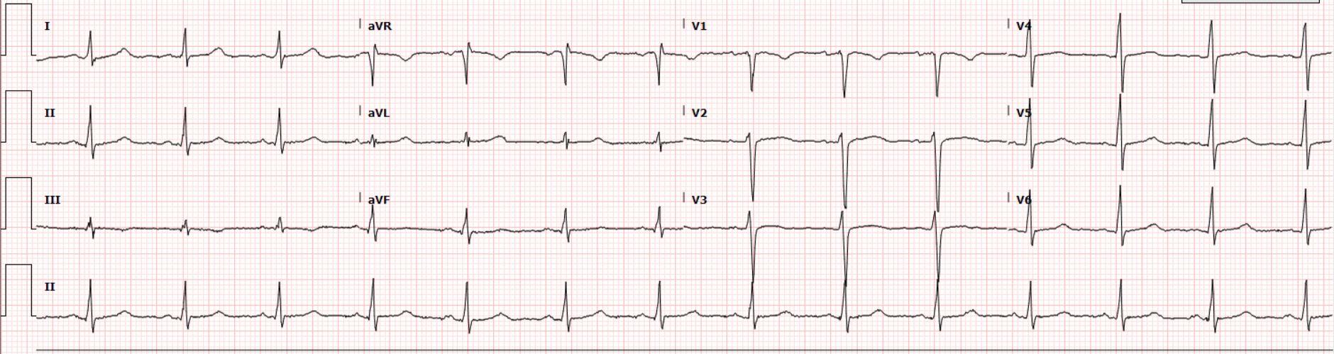 Baseline ECG