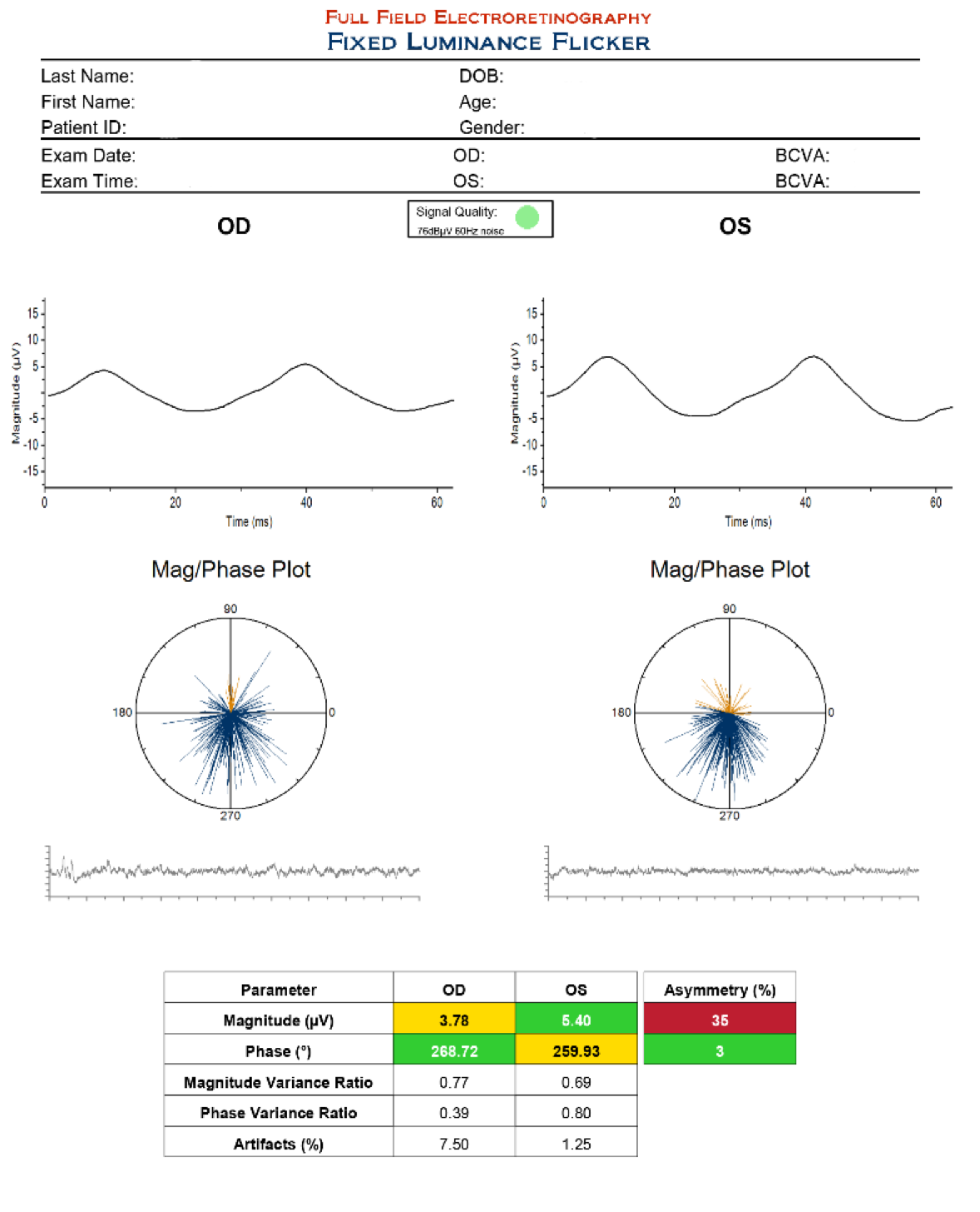 This ffERG with fixed luminance shows reduced magnitude values in both eyes, with the right worse than the left. The left eye has a low normal value (normal values are greater than 5.1). The mag/phase plot shows inconsistent scattered responses over all four quadrants (normal responses should be tightly packed together, showing good consistency in the bottom right quadrant).
