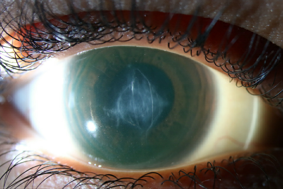 Central scar following corneal hydrops in scleral lens-wearing patient with advanced keratoconus.