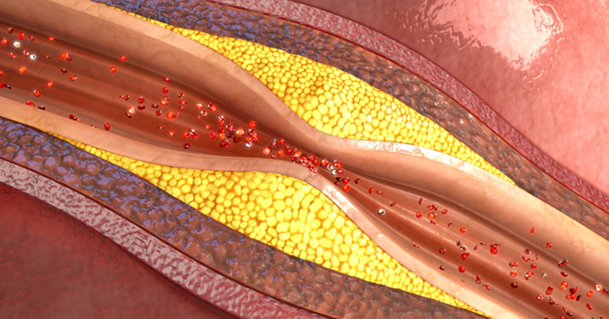 aerial view of blood flow in a clogged artery, Shutterstock